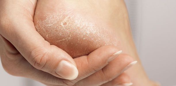 Bild zu Dry skin of diabetic feet - Beneficial Effects of a Topical Foam Cream Product in a Study on Subjects with Type 1 and Type 2 Diabetic Foot Skin Xerosis
