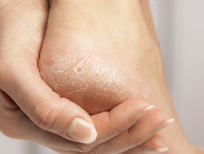 Bild zu Dry skin of diabetic feet - Beneficial Effects of a Topical Foam Cream Product